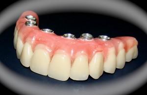 Permalink to:Implantes dentários